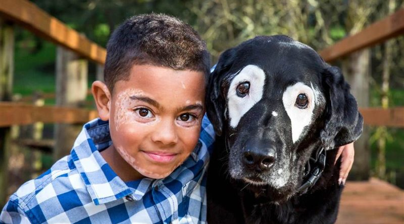 Dog with vitiligo meets kids with the condition – PetsOnBoard.com